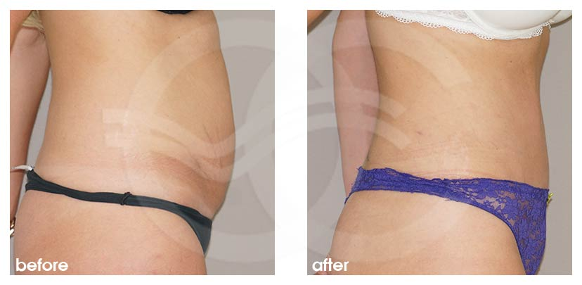 Tummy Tuck Before After Abdominoplasty Restored Muscles Photo profile Ocean Clinic Marbella