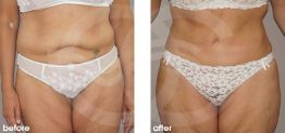 Tummy Tuck Abdominoplasty Before After Photo Ocean Clinic case 21 Marbella