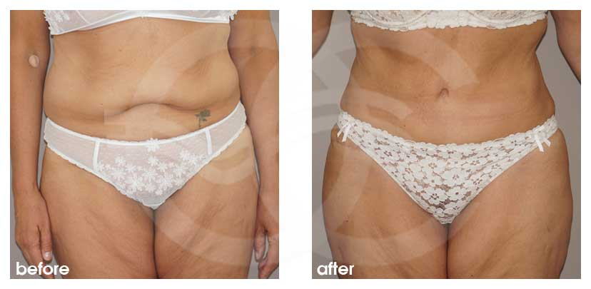 Tummy Tuck Before After Abdominoplasty removed excess fat and skin Photo frontal Ocean Clinic Marbella