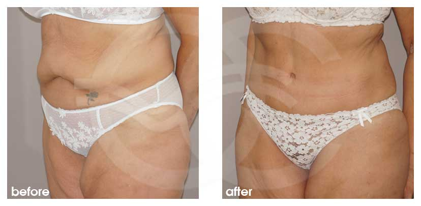 Tummy Tuck Before After Abdominoplasty removed excess fat and skin Photo side Ocean Clinic Marbella