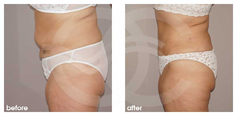 Tummy Tuck Before After Abdominoplasty removed excess fat and skin Photo profile Ocean Clinic Marbella