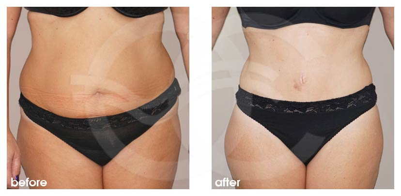 Tummy Tuck Before After Abdominoplasty stunning result Photo frontal Ocean Clinic Marbella