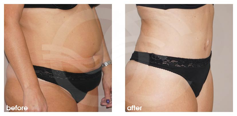 Tummy Tuck Before After Abdominoplasty stunning result Photo side Ocean Clinic Marbella
