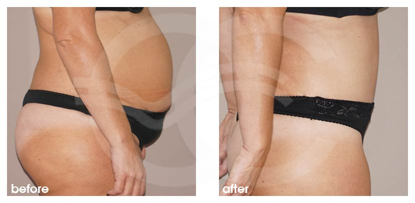 Tummy Tuck Before After Abdominoplasty stunning result Photo profile Ocean Clinic Marbella