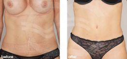 Tummy Tuck Abdominoplasty Before After Photo Ocean Clinic case 23 Marbella