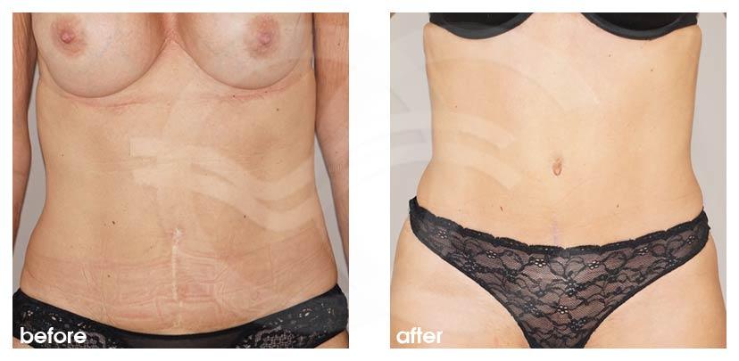 Bauchdeckenstraffung Vorher Nachher Abdominoplastik Verbesserte Form des Bauch Foto vorne. Marbella Ocean Clinic