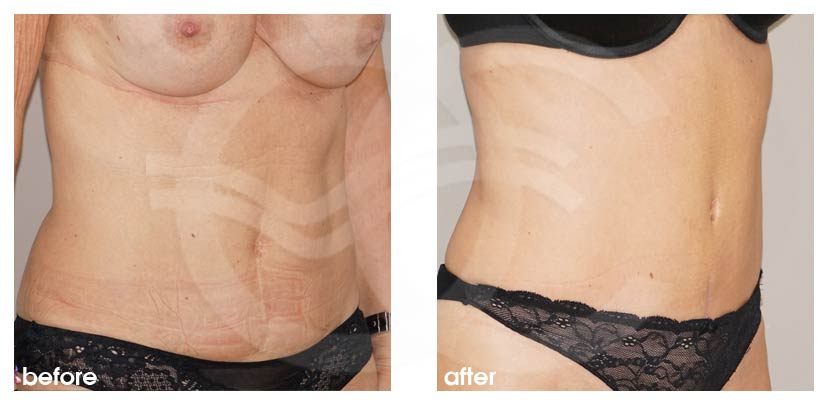 Bauchdeckenstraffung Vorher Nachher Abdominoplastik Verbesserte Form des Bauch Foto seitlich. Marbella Ocean Clinic