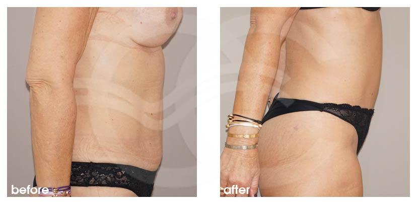 Bauchdeckenstraffung Vorher Nachher Abdominoplastik Verbesserte Form des Bauch Foto profil. Marbella Ocean Clinic