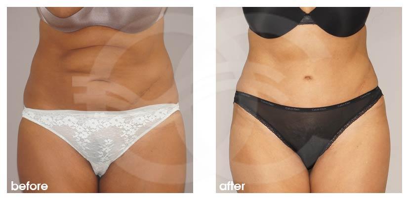 Bauchdeckenstraffung Vorher Nachher Abdominoplastik überschüssiges Haut- und Fettgewebe Foto vorne. Marbella Ocean Clinic