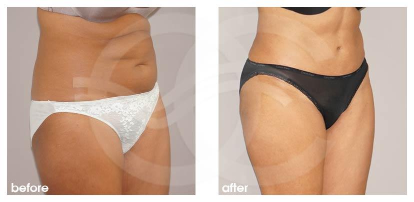 Bauchdeckenstraffung Vorher Nachher Abdominoplastik überschüssiges Haut- und Fettgewebe Foto seitlich. Marbella Ocean Clinic