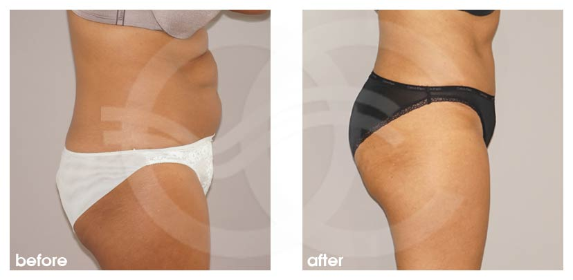 Tummy Tuck Before After Abdominoplasty cosmetic surgery procedure Photo profile Ocean Clinic Marbella