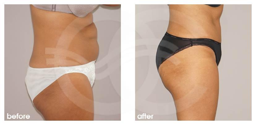 Bauchdeckenstraffung Vorher Nachher Abdominoplastik überschüssiges Haut- und Fettgewebe Foto profil. Marbella Ocean Clinic