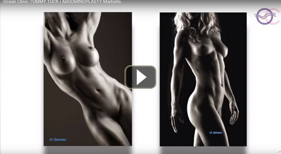 TUMMY TUCK Video Abdominoplasty Pubic Liftings Ocean Clinic Marbella